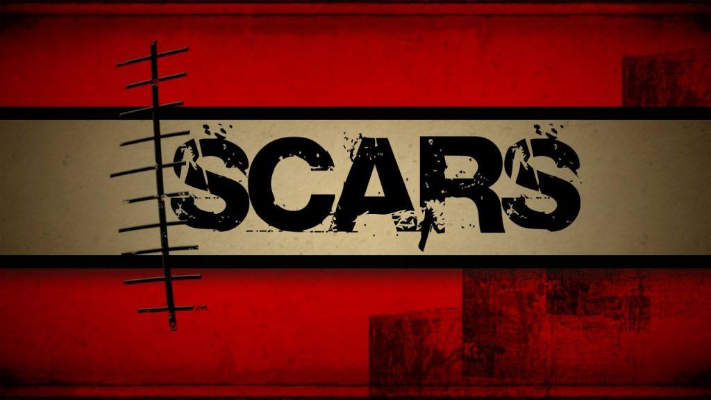 Scar image